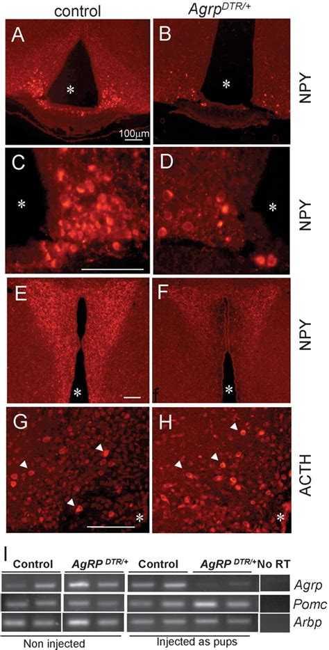NPY/AgRP Neurons Are Essential for Feeding in Adult Mice